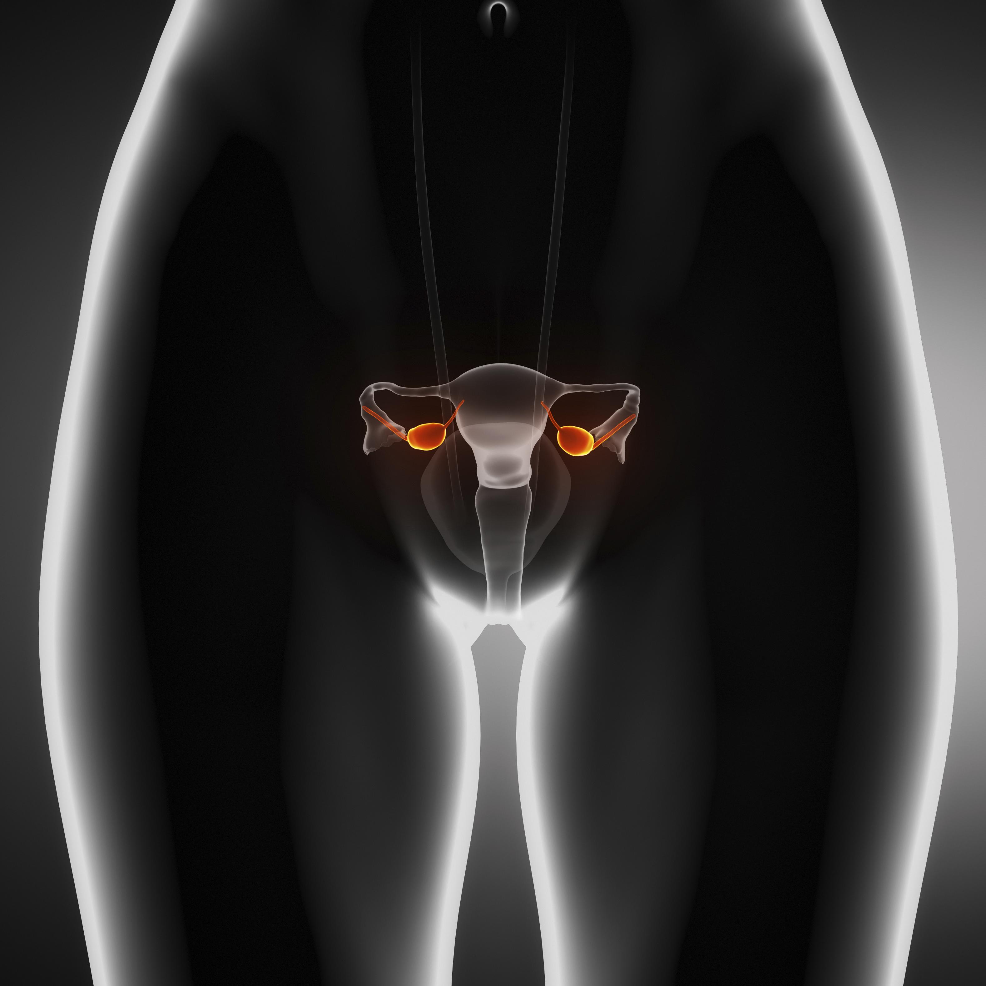 Неопухолевые изменения яичников