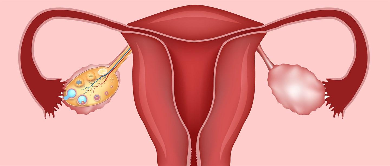 Нормальная эхоанатомия органов женского малого таза.